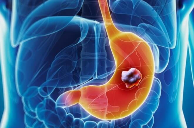 Злоякісні новоутворення  шлунково-кишкового тракту