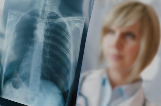 Рак легенів: види і симптоми захворювання