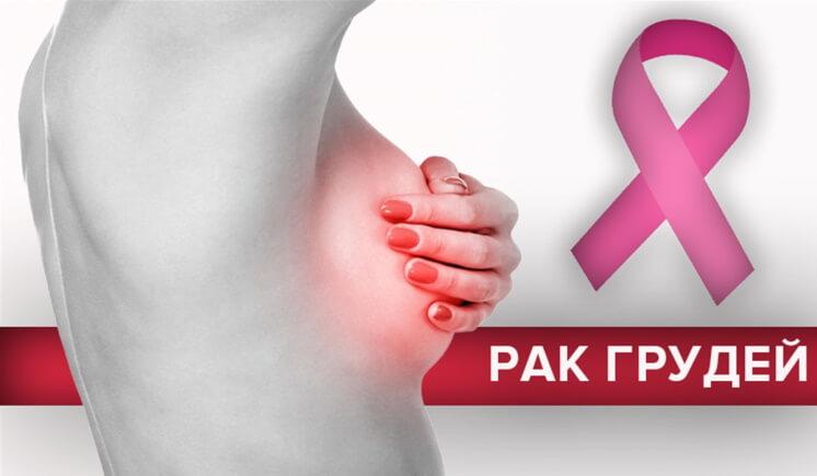 Фактори ризику розвитку раку молочної залози